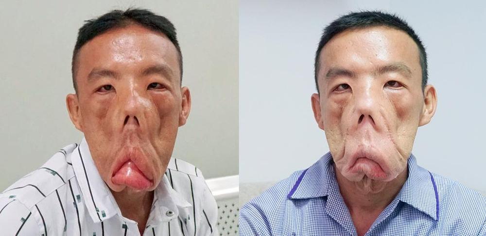 Anh Mến với gương mặt khác lạ, bác sĩ Tú Dung 'trần tình' Ảnh 1