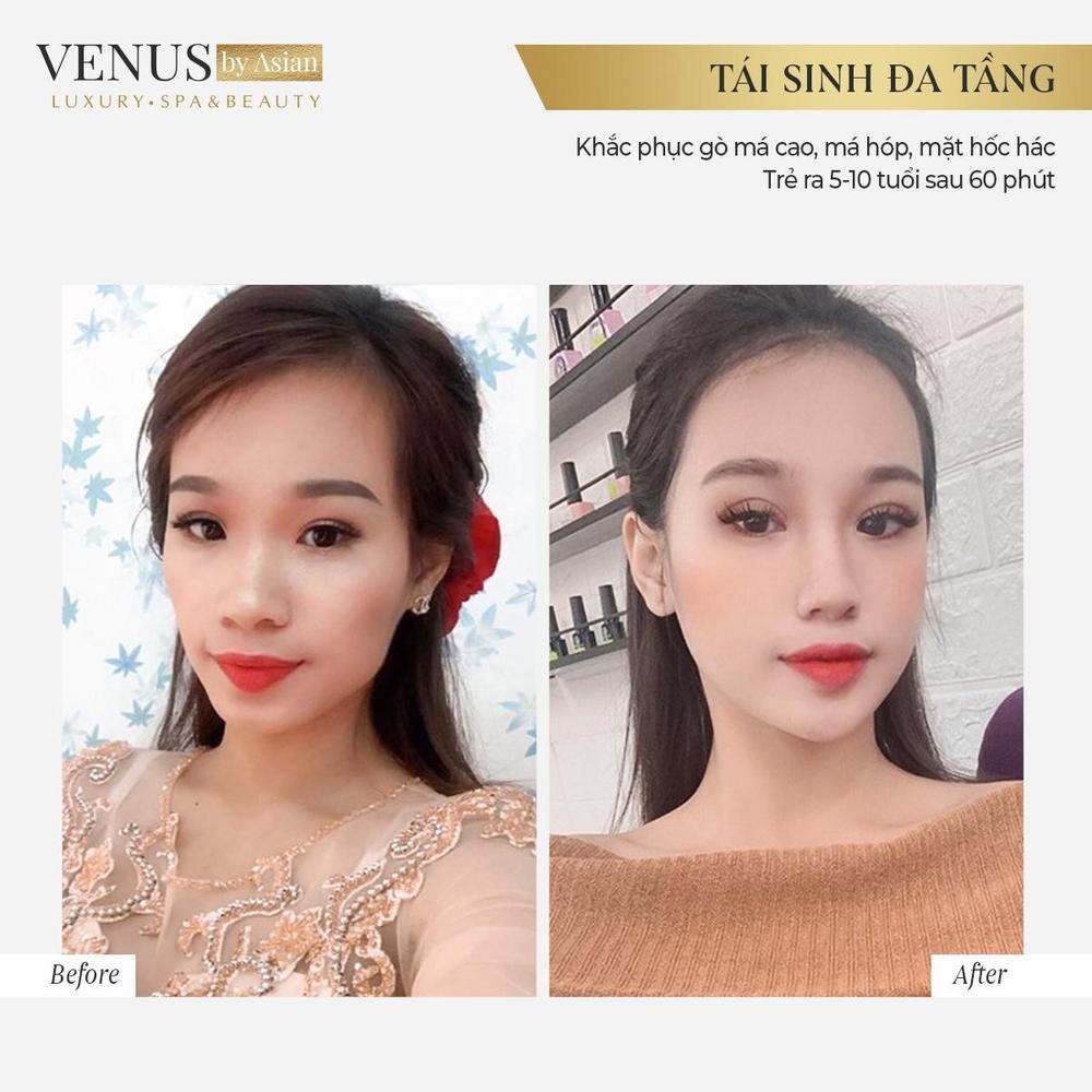 Tái sinh đa tầng lưu giữ thanh xuân tại Venus by Asian có tốt không? Ảnh 2