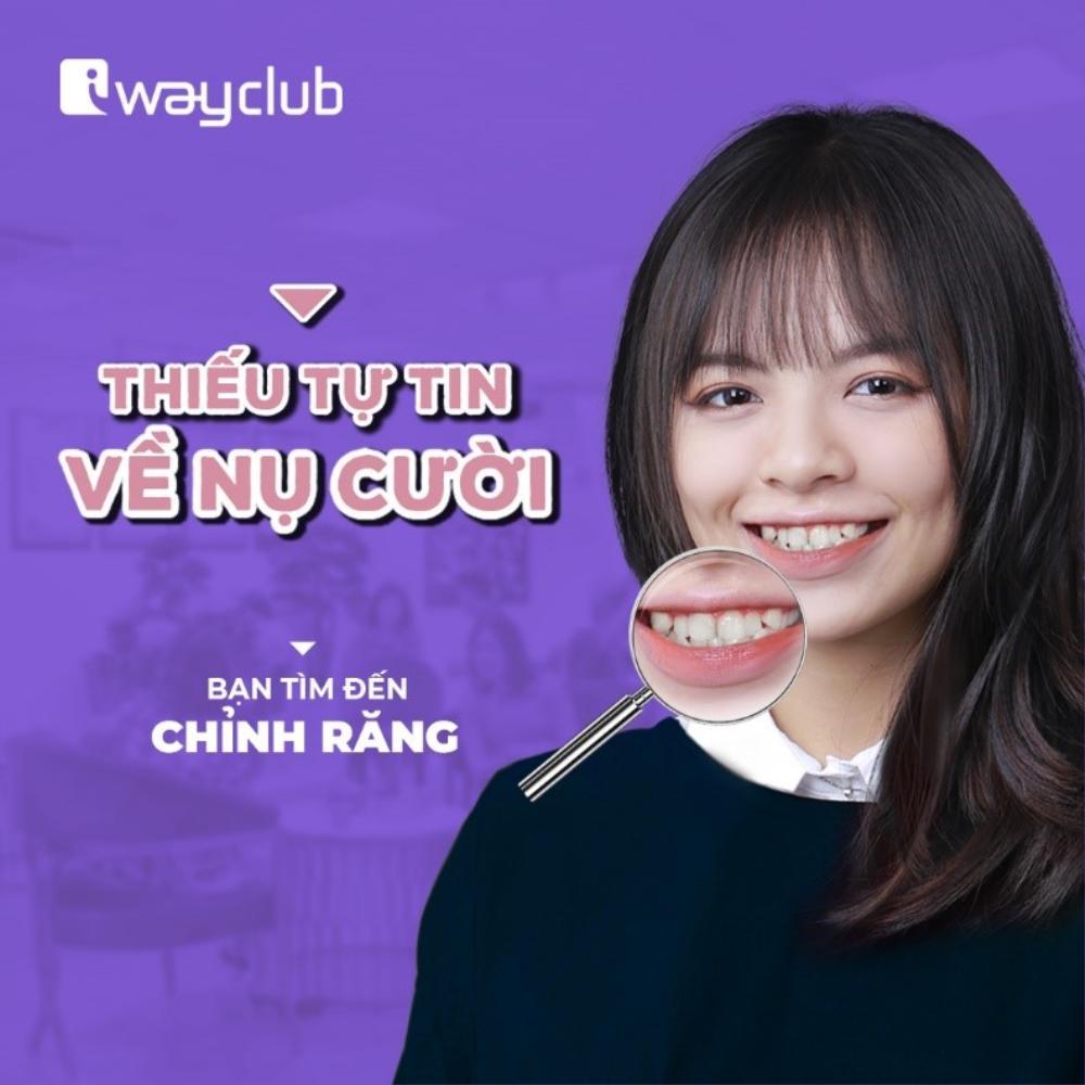 Công nghệ niềng răng trong suốt tại iWay Club cho nụ cười luôn xinh tươi Ảnh 3