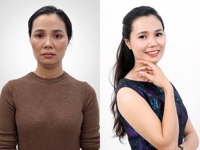 Phụ nữ Việt phát sốt với công nghệ căng chỉ Be - Young chuẩn y khoa hiện đại từ Hàn Quốc Ảnh 1