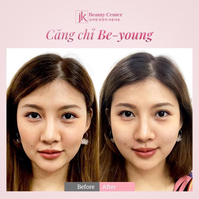 Phụ nữ Việt phát sốt với công nghệ căng chỉ Be - Young chuẩn y khoa hiện đại từ Hàn Quốc Ảnh 3