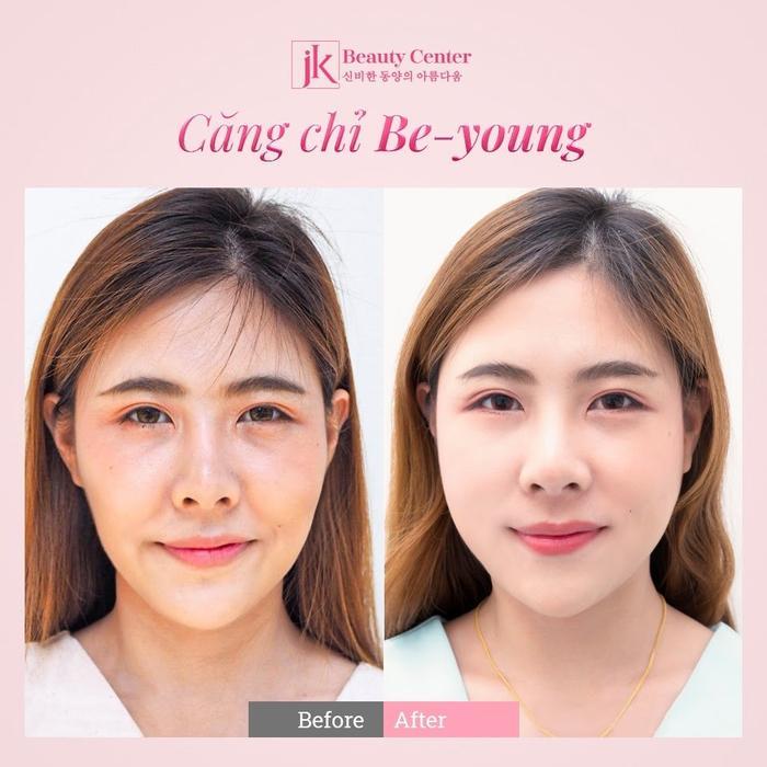 Phụ nữ Việt phát sốt với công nghệ căng chỉ Be - Young chuẩn y khoa hiện đại từ Hàn Quốc Ảnh 5