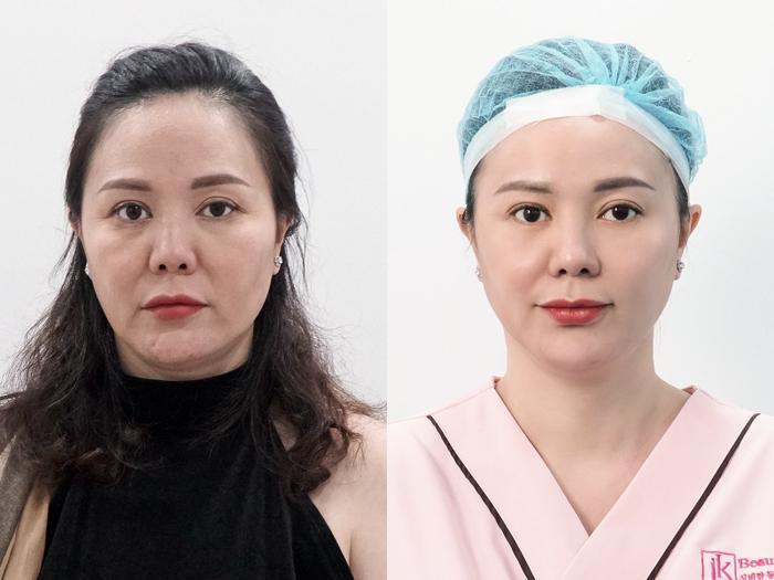 Phụ nữ Việt phát sốt với công nghệ căng chỉ Be - Young chuẩn y khoa hiện đại từ Hàn Quốc Ảnh 6