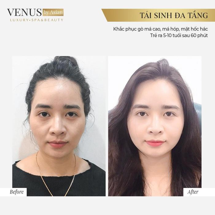 Hơn 10.000 chị em đã lột xác hoàn hảo sau khi thực hiện Tái sinh đa tầng tại Venus by Asian Ảnh 4