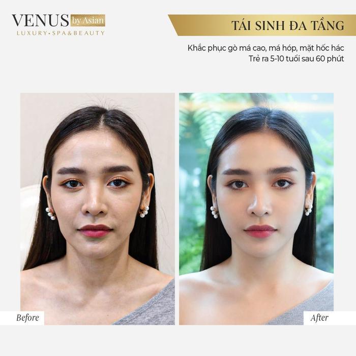 Hơn 10.000 chị em đã lột xác hoàn hảo sau khi thực hiện Tái sinh đa tầng tại Venus by Asian Ảnh 5