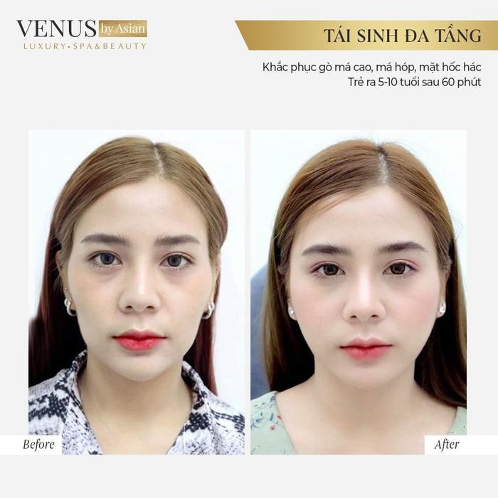 Hơn 10.000 chị em đã lột xác hoàn hảo sau khi thực hiện Tái sinh đa tầng tại Venus by Asian Ảnh 6