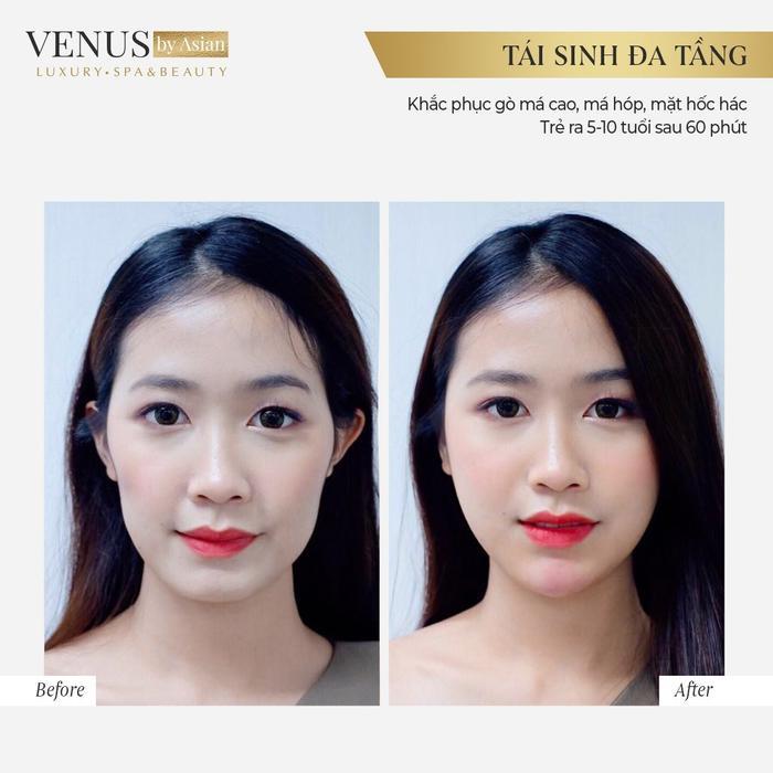 Hơn 10.000 chị em đã lột xác hoàn hảo sau khi thực hiện Tái sinh đa tầng tại Venus by Asian Ảnh 7