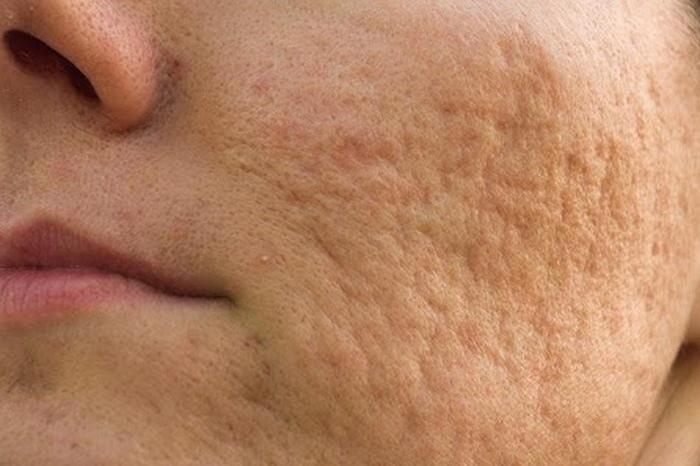 Kem trị sẹo Nacurgo Gel có hiệu quả với sẹo do mụn?