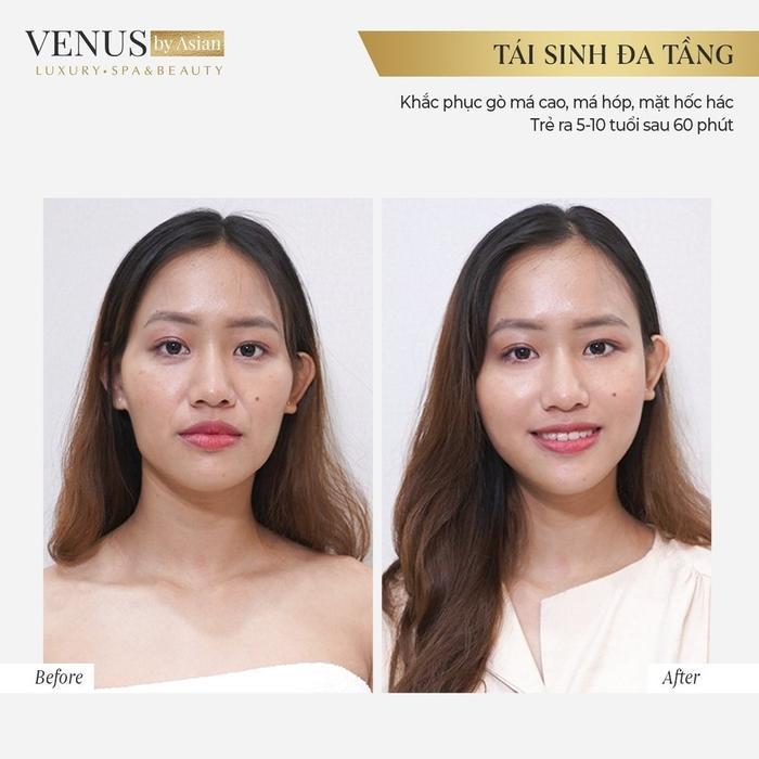 Phòng khám chuyên khoa phẫu thuật tạo hình thẩm mỹ Venus by Asian nơi Tâm - Tầm - Tài hội tụ Ảnh 3
