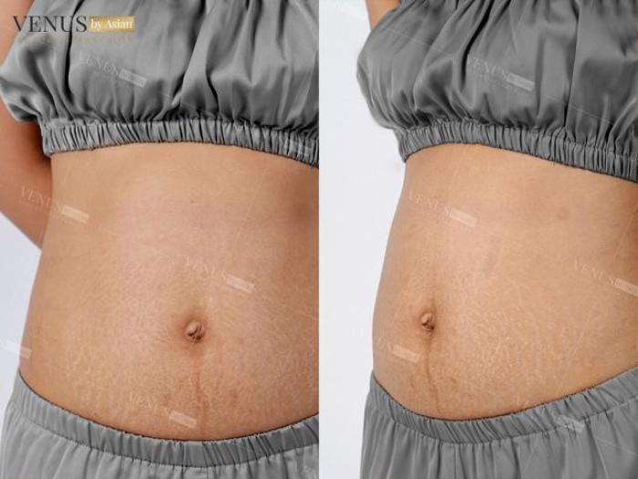 Phòng khám chuyên khoa phẫu thuật tạo hình thẩm mỹ Venus by Asian nơi Tâm - Tầm - Tài hội tụ Ảnh 4