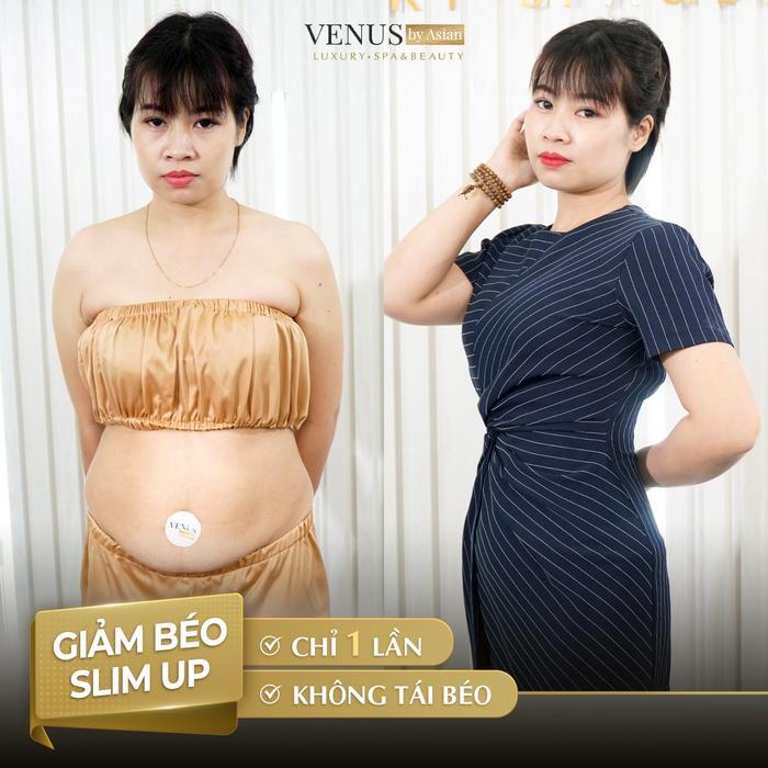 Công nghệ chuyển mỡ trắng thành mỡ nâu - vừa giảm béo lại bảo vệ sức khoẻ Ảnh 5